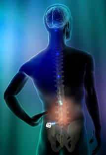 spinal-cord-stimu-3