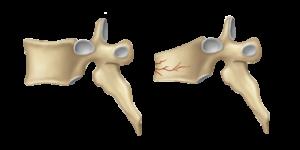 vertebroplasty-image