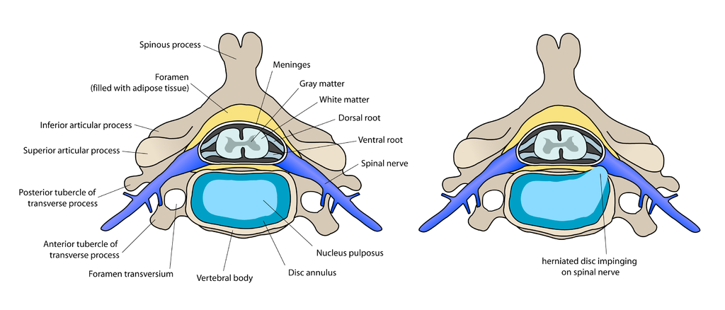 diagram of herniated disc
