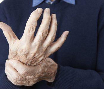 stem cells for arthritis