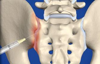 sacroiliac_joint