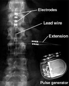 spinal-cord-stim-4-240x300