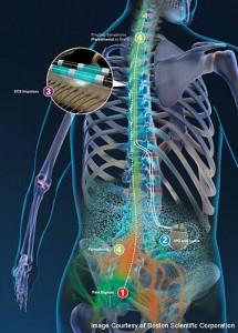 spinal-cord-stimulator-2-215x300